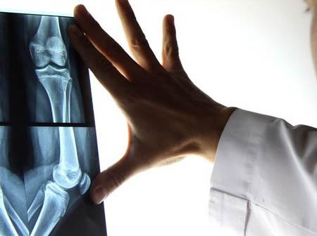 traumatología, traumatologo lomas de zamora, traumatologia lanus